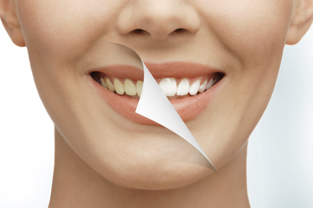 teeth whitening miami